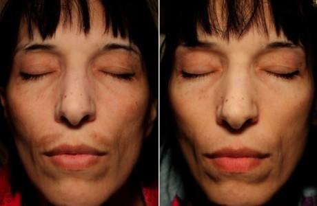 Dermaceutic-Mela peel