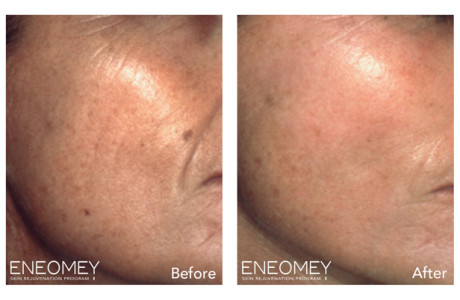 ENEOMEY-Facial-peel_2
