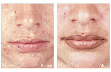 ENEOMEY-glycolic-masque_2